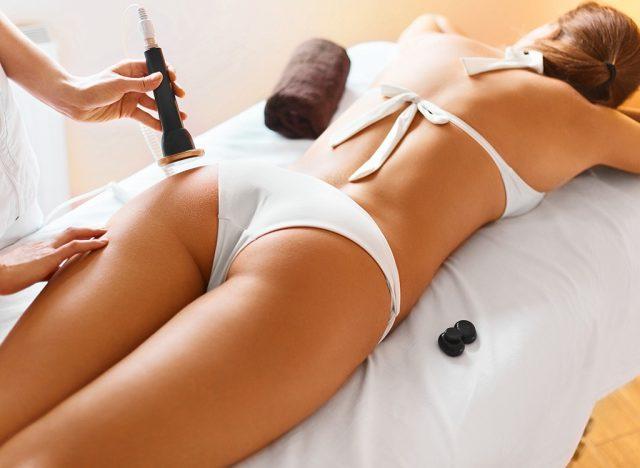 15 Secrets About Your Cellulite