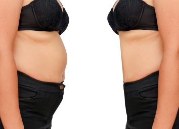 Woman weight loss before and after