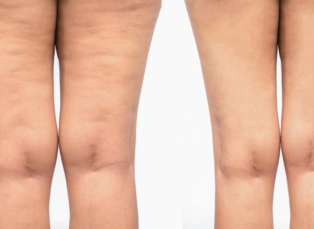 What You Need to Eat to Reduce Cellulite