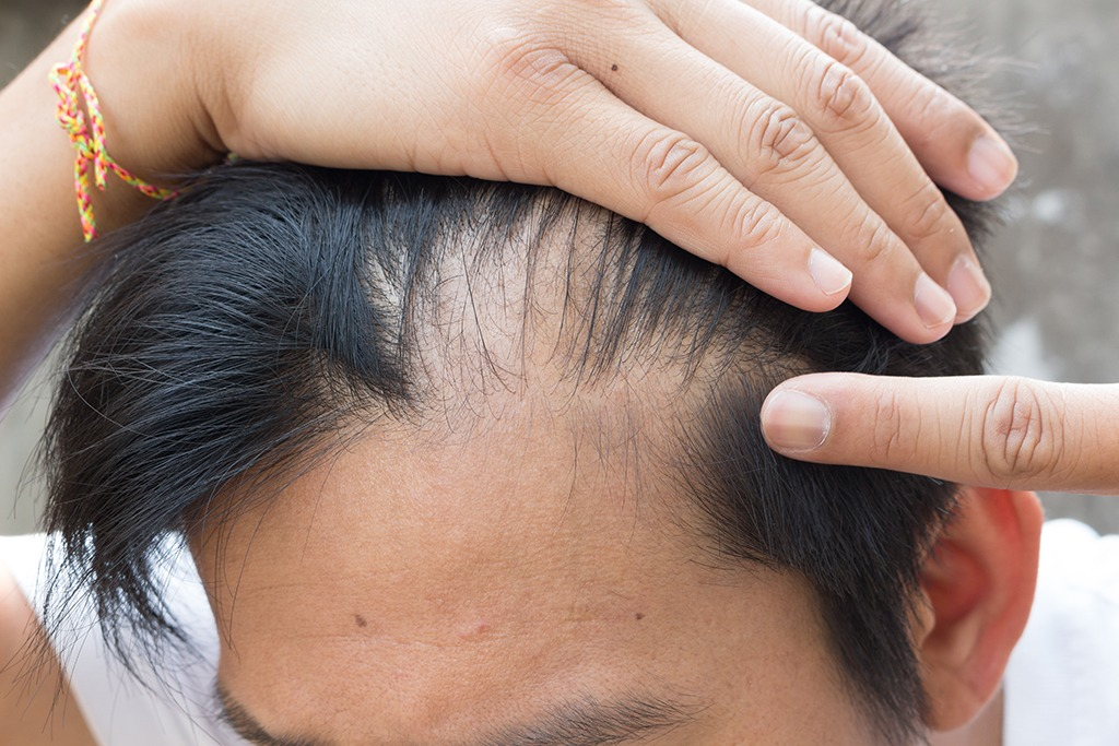 balding man hair loss
