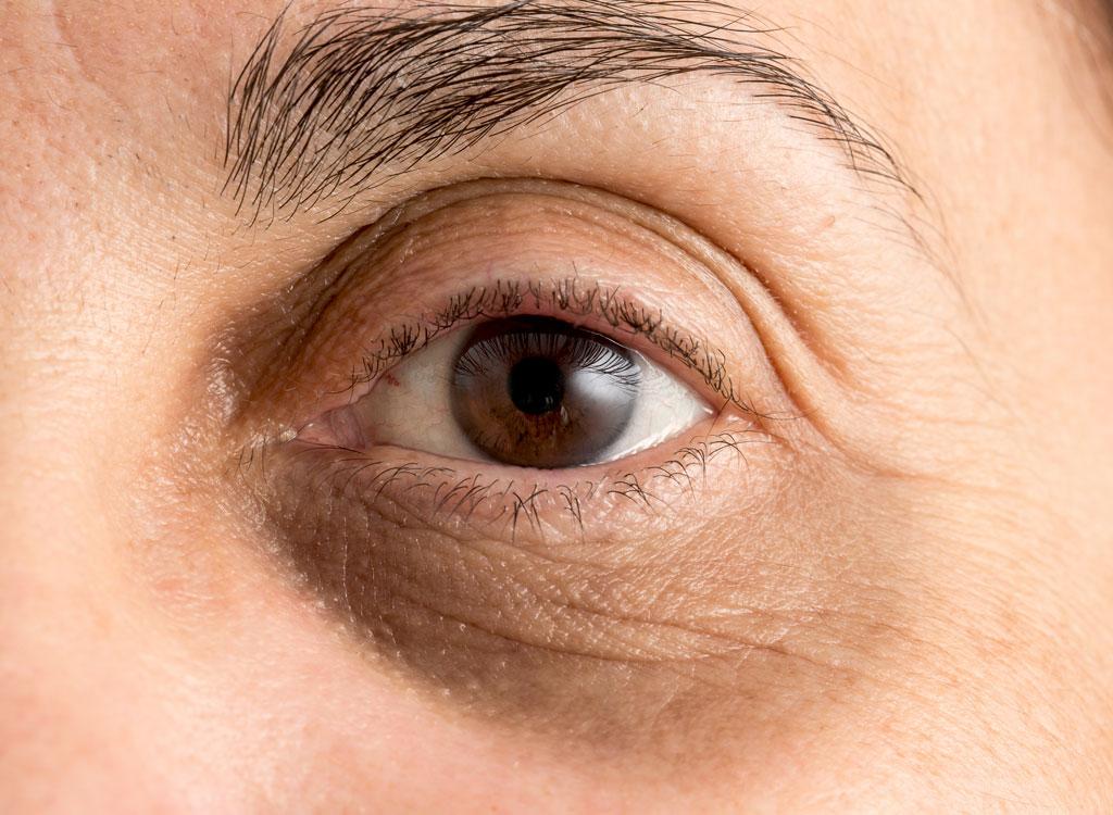 Woman with dark eye circles