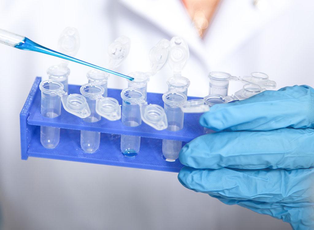 genetic test assay