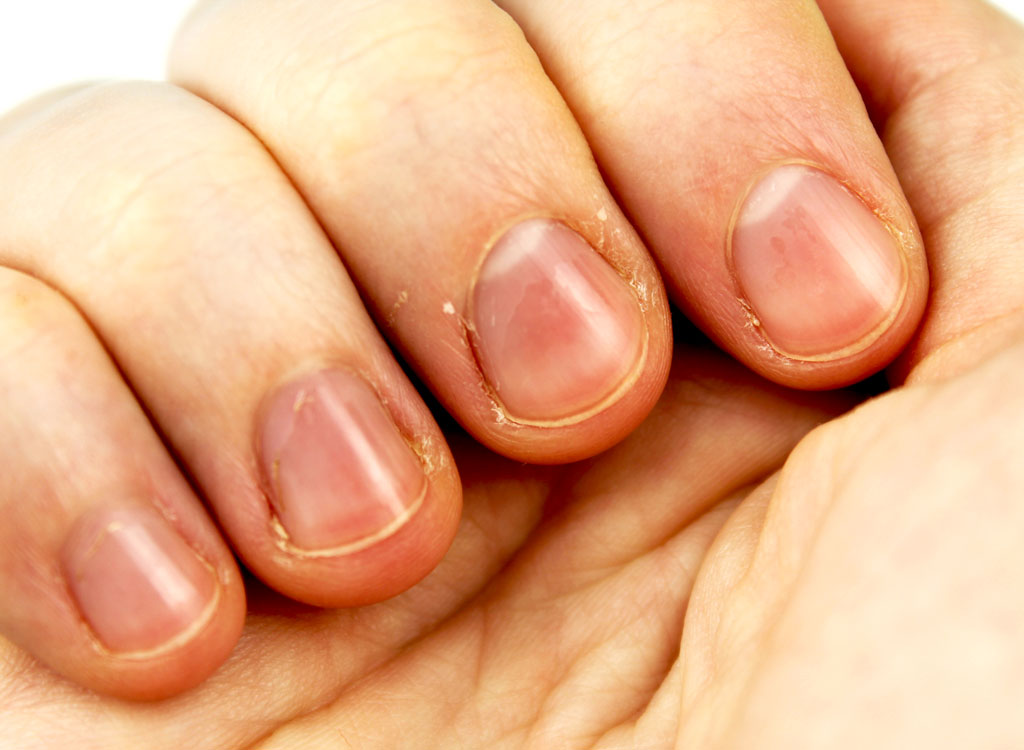 Hand with brittle nails.