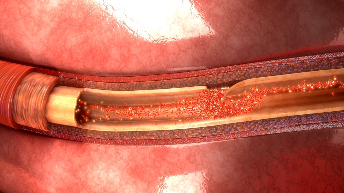 Artery Dissection 3d illustration