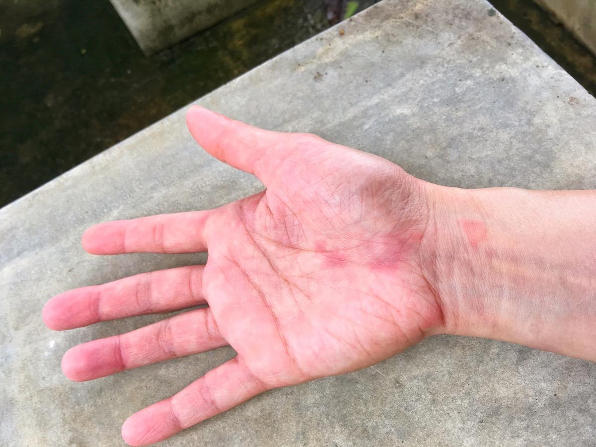 lupus-hand