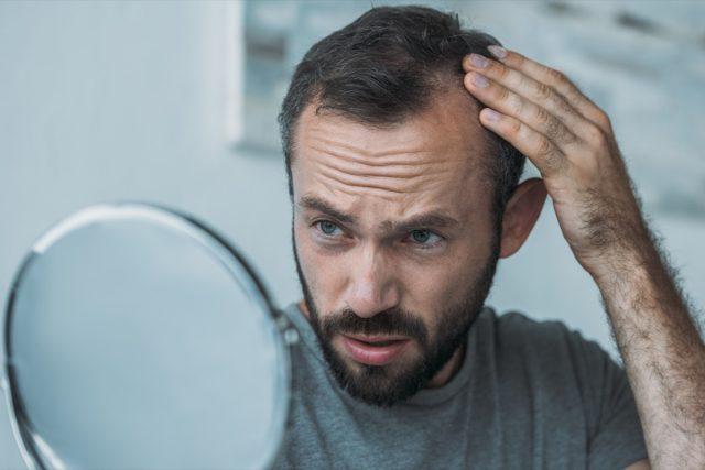 man with alopecia looking at mirror