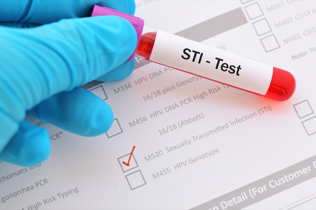 lood sample for STI (sexually transmitted infection) test -