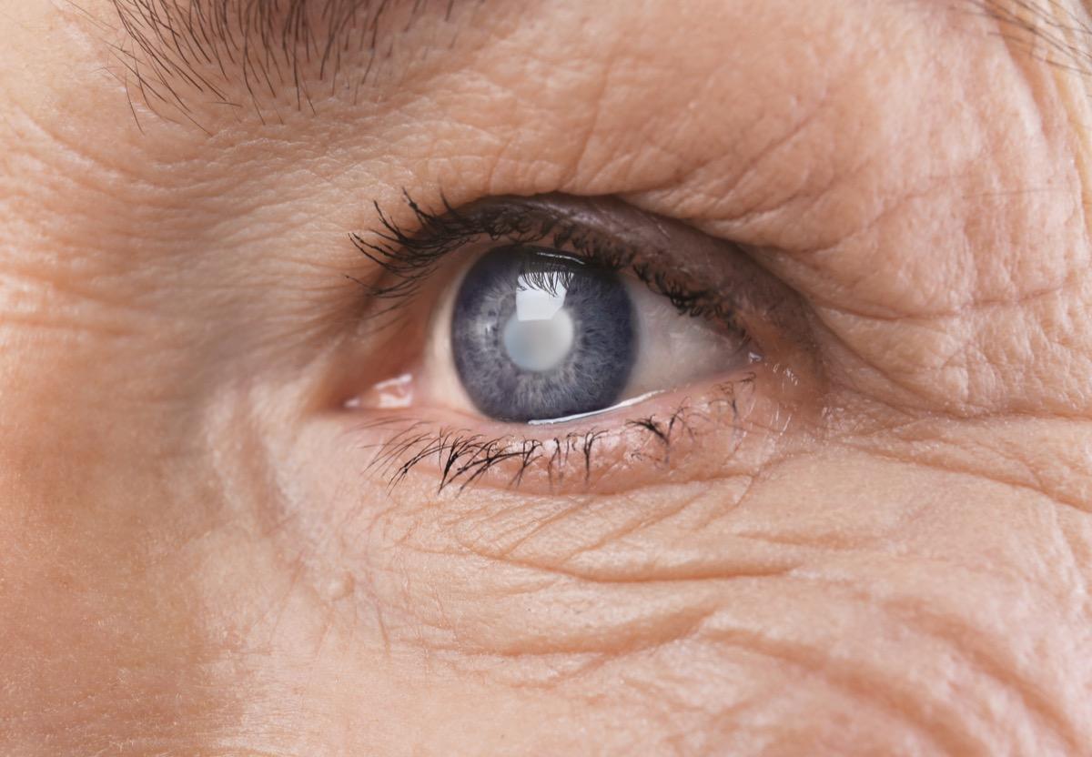 Cataract concept. Senior woman's eye