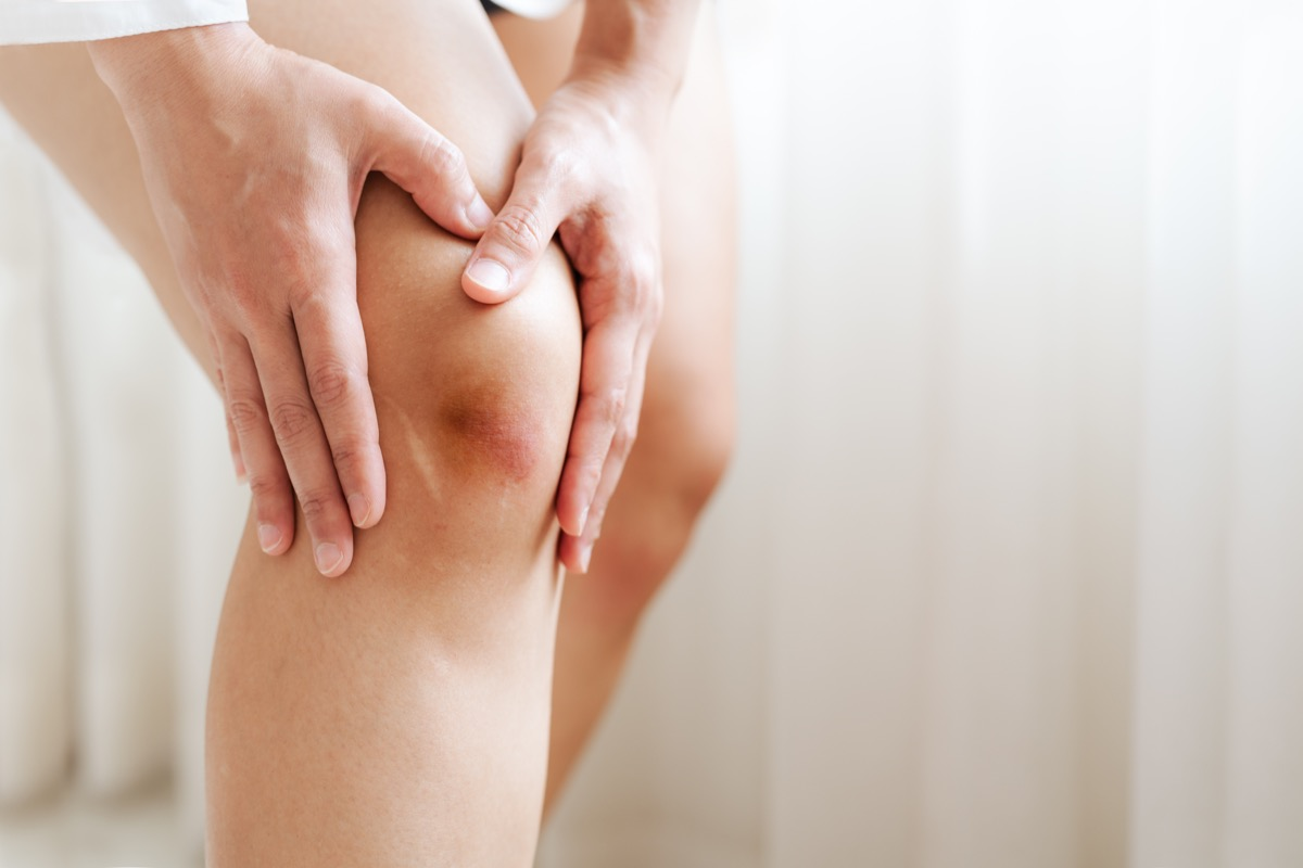 woman touches her bruised knee