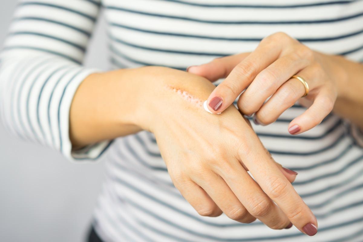 heat burn wound on her hand.
