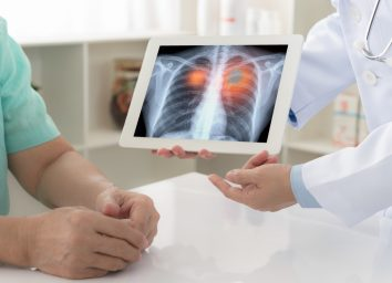 doctor explaining results of lung check up from x-ray scan chest on digital tablet screen to patient