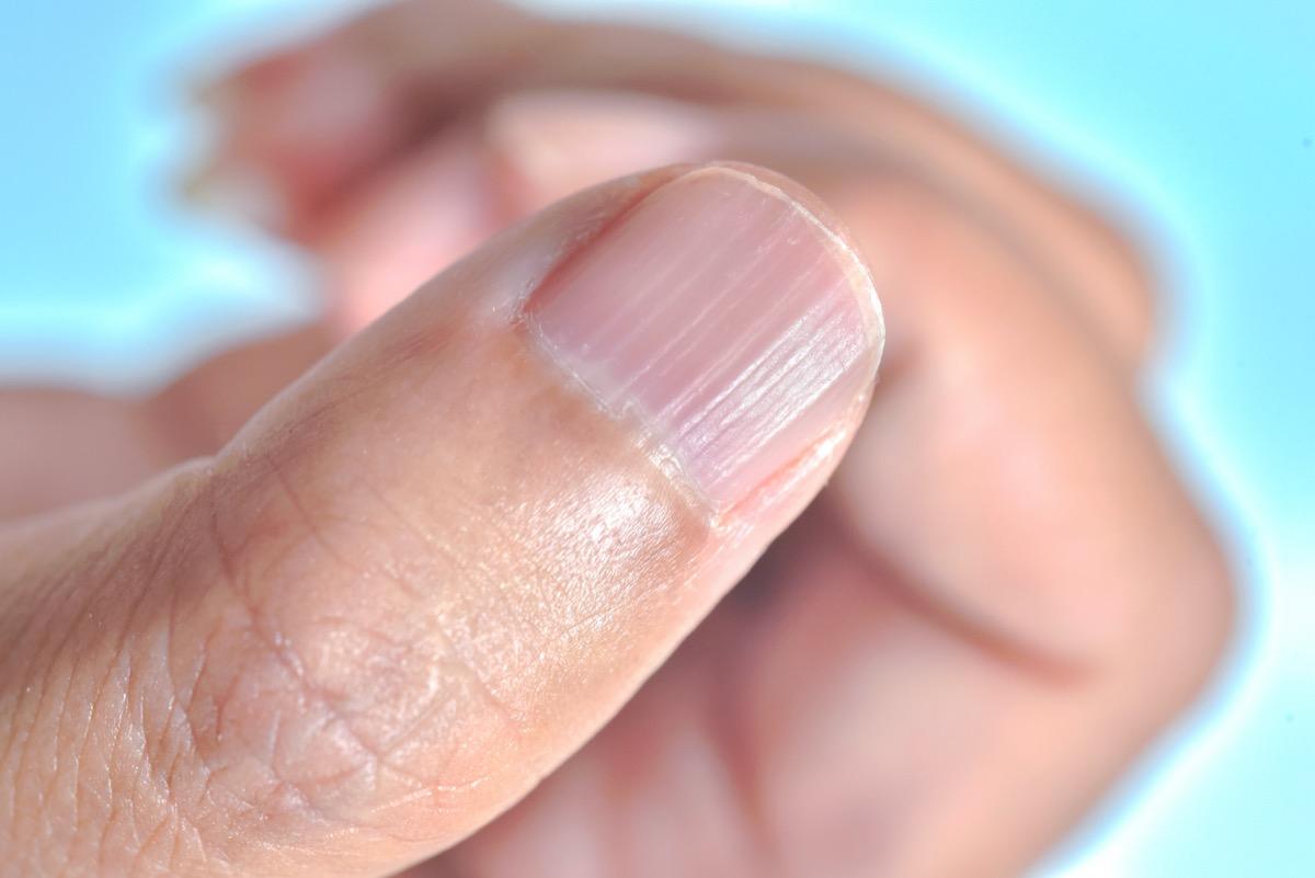 Longitudinal ridging nail