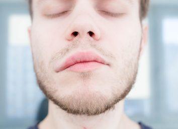 symptom of stroke cerebral. asymmetry of the face. angioedema