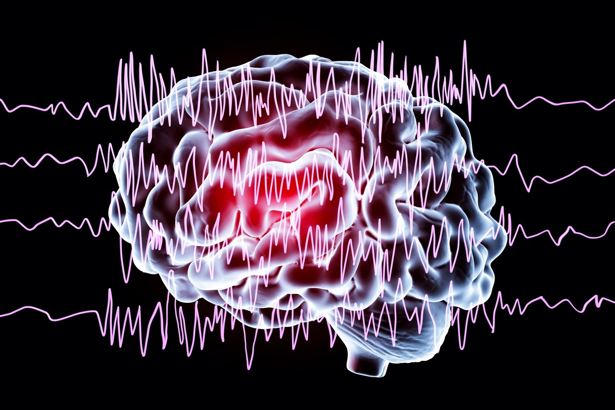 Brain and encephalography in epilepsy patient during seizure attack