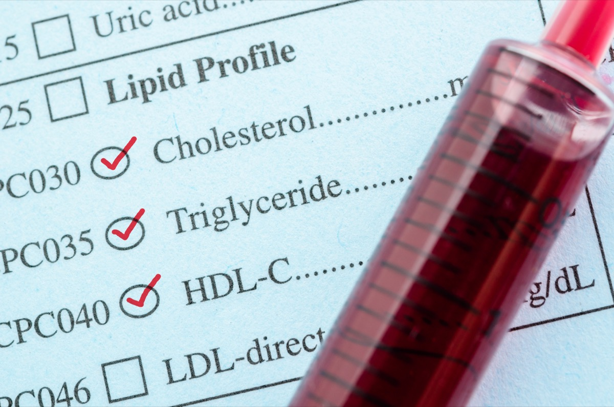 Red mark check on Cholesterol, Triglyceride and HDL-Con request form with blood sample in blood tube for test