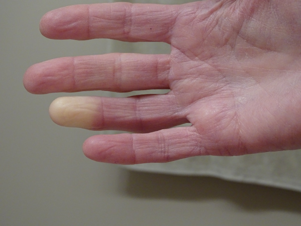 Adult hand with Raynaud's Syndrome
