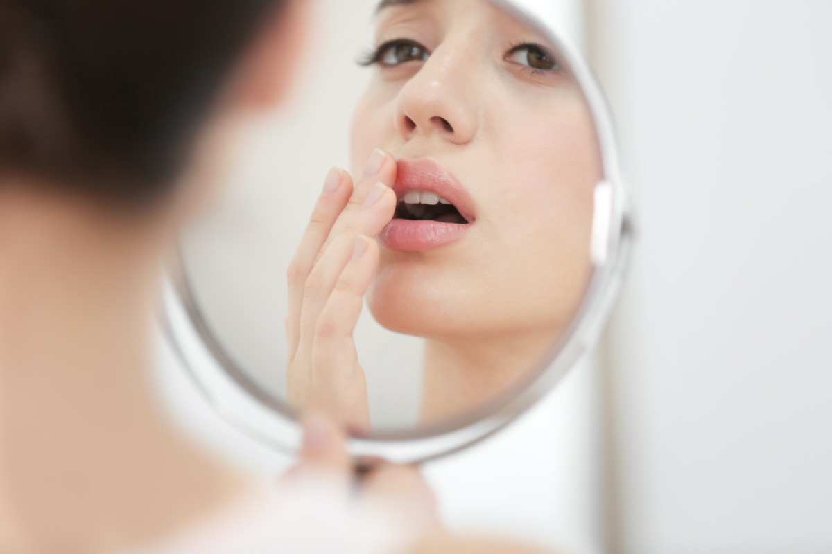 woman with cold sore looking in mirror at home