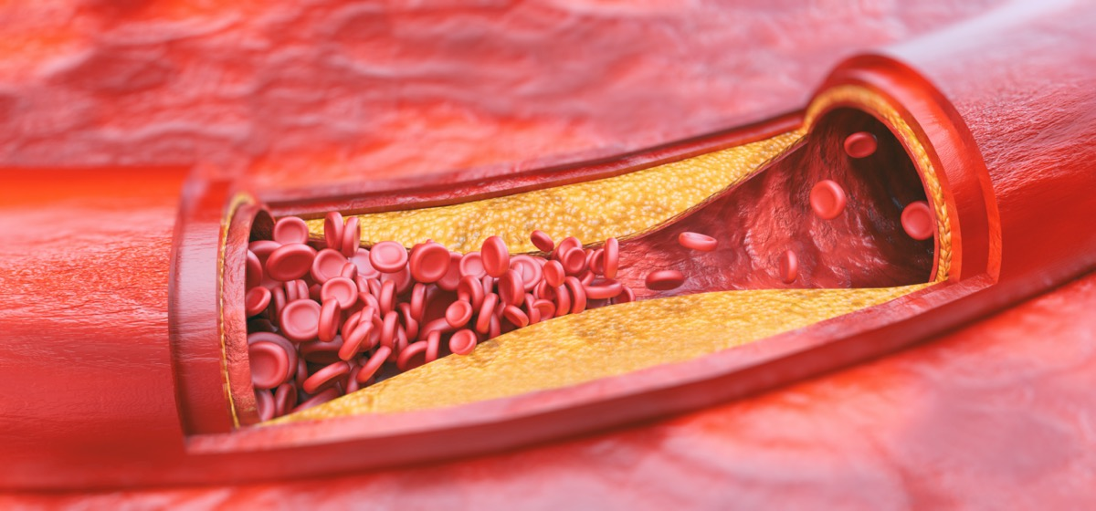 Closeup of a atherosclerosis - 3D rendering