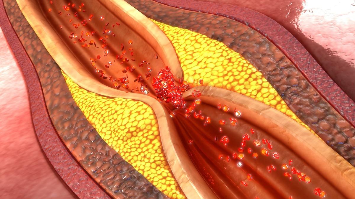 coronary artery plaque 3d illustration