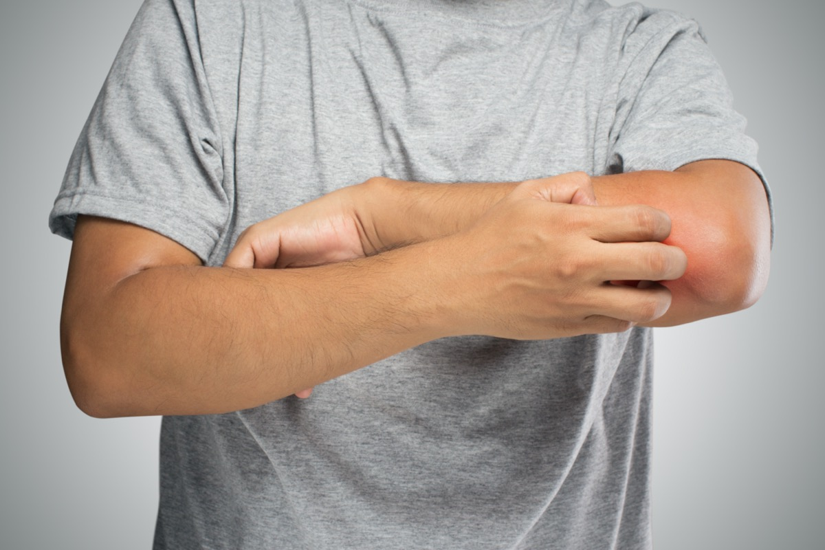 People scratch the itch with hand, Elbow