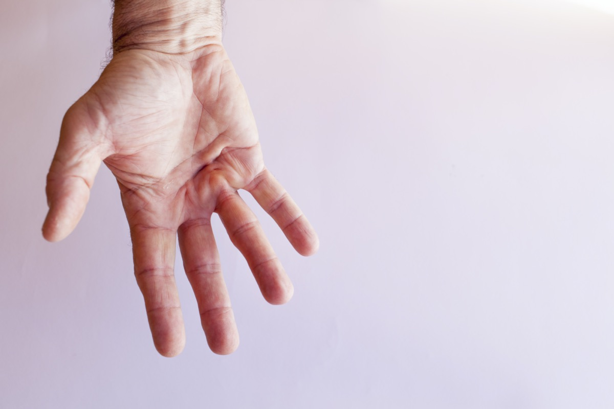 Hand of an man with Dupuytren contracture disease