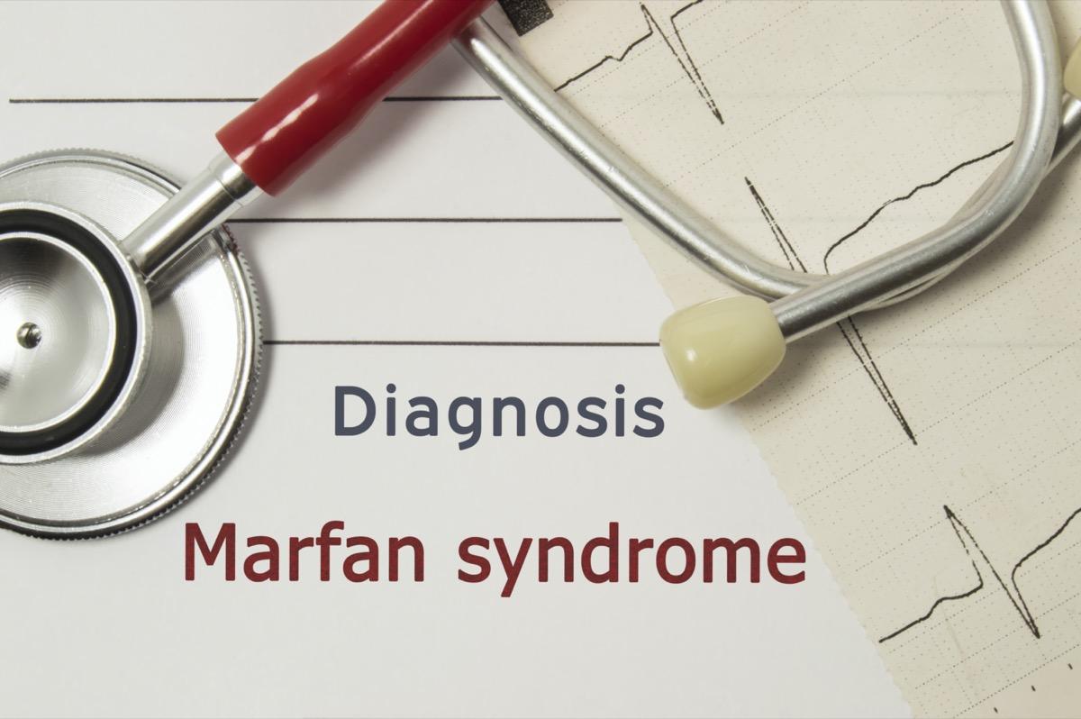 Cardiac diagnosis of Marfan Syndrome