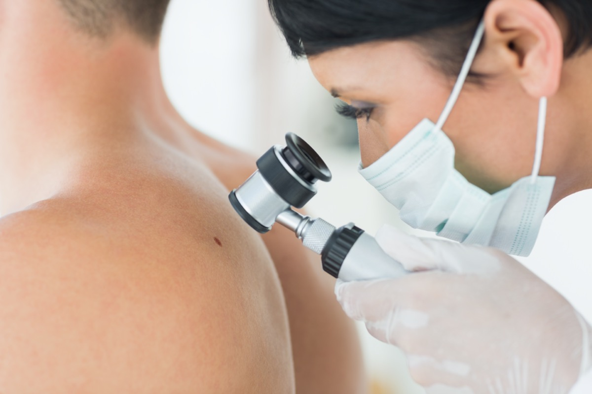 dermatologist examining mole on back of male patient in clinic