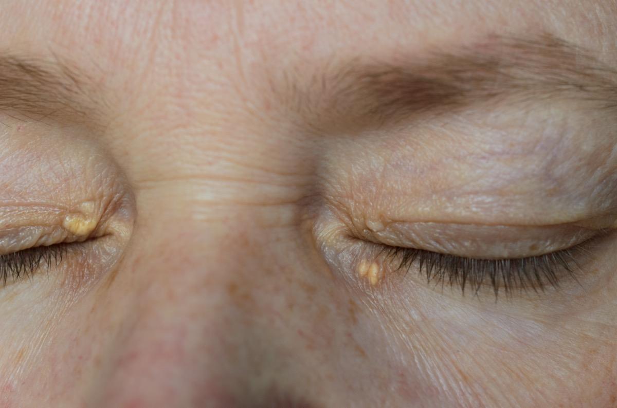 woman eyes with Xanthelasma on the eyelids. Hypercholesterolemia, high cholesterol