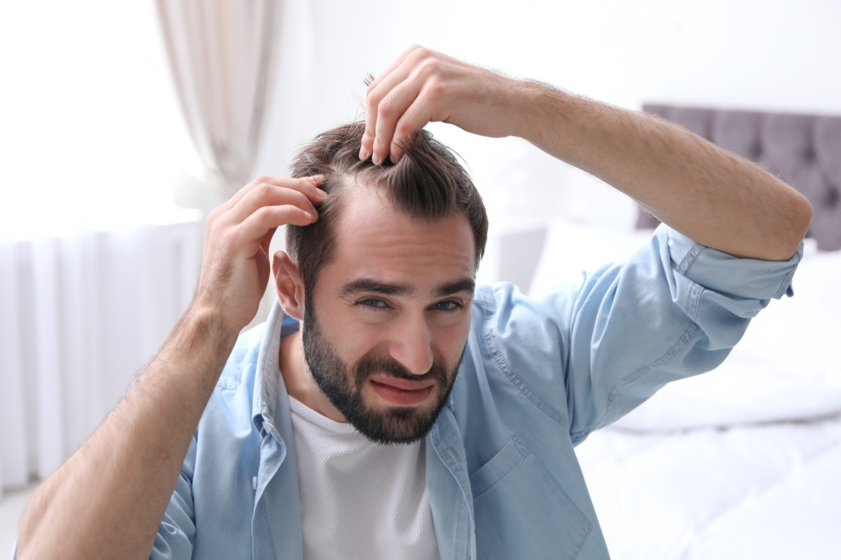 man with hair loss problem indoors