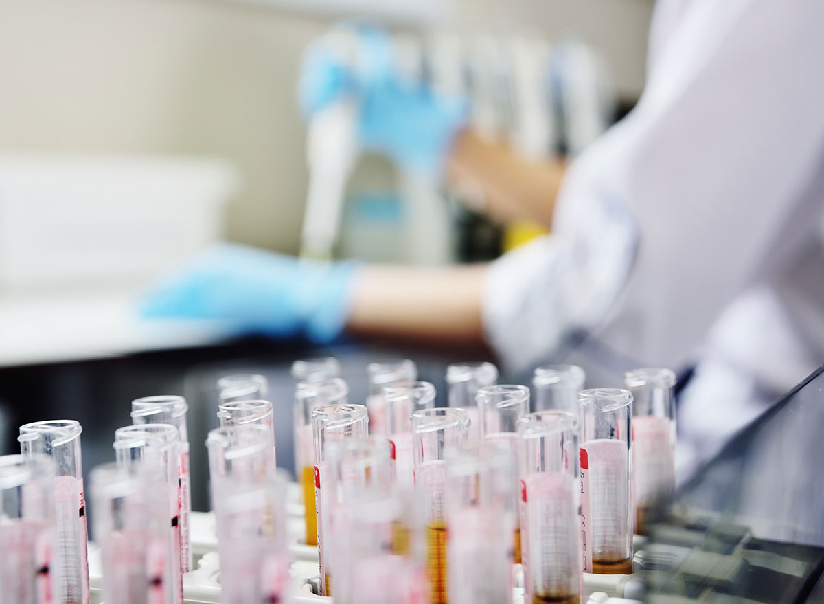 geneic testing