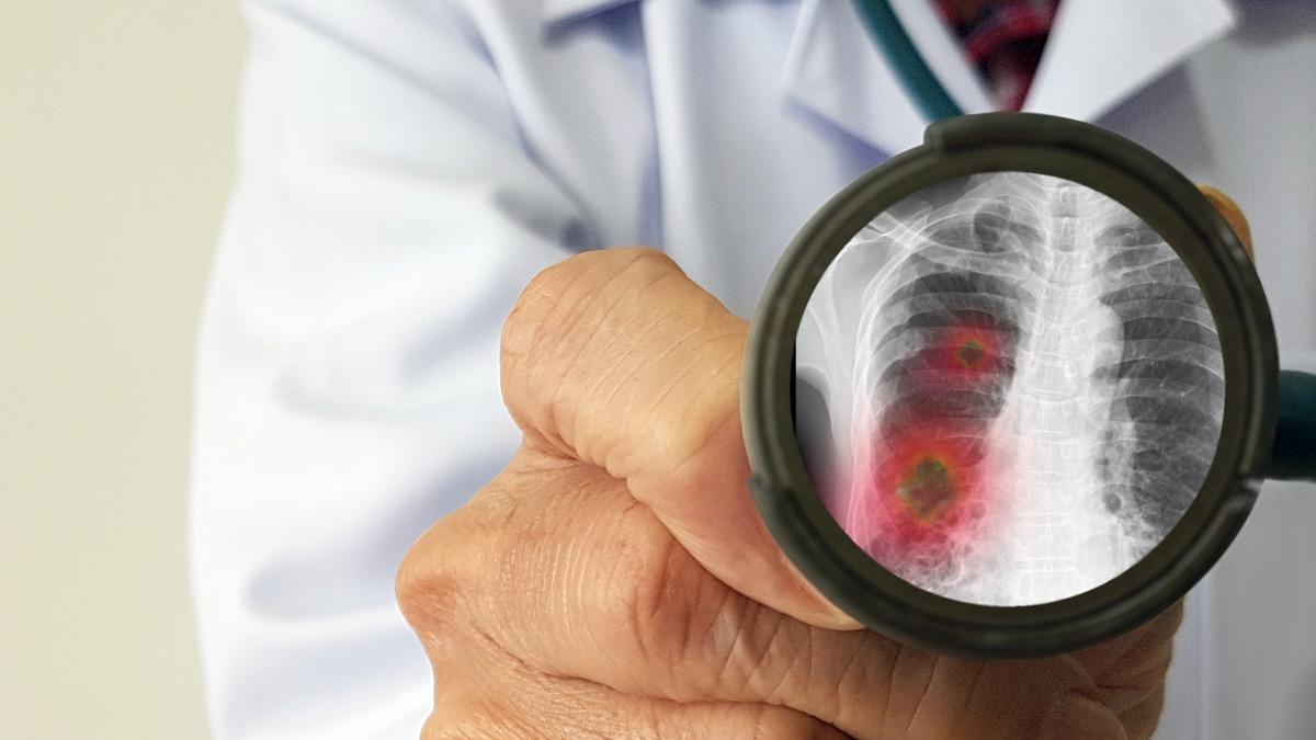 Infectious doctor exam and screening for new corona virus(novel Coronavirus 2019 disease,COVID-19,nCoV)that pandemic outbreak