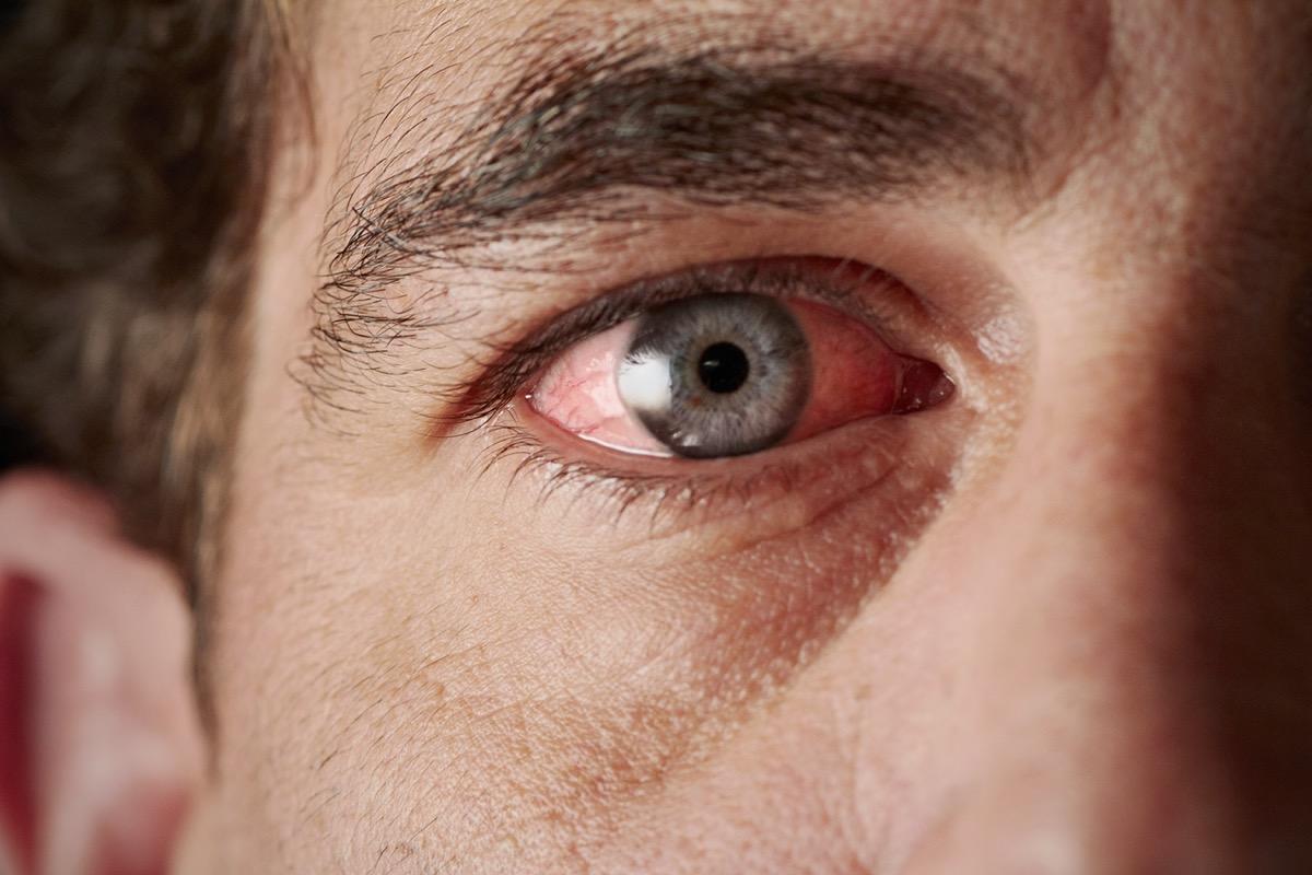 Closeup of irritated red bloodshot eye