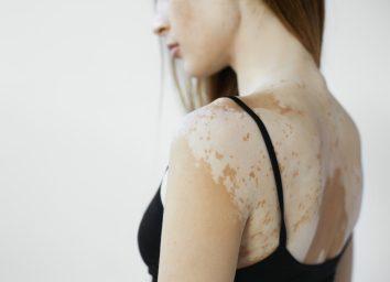 female model in black tank top suffering from vitiligo disorder