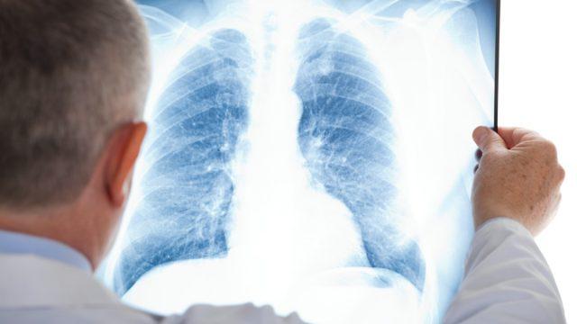 https://www.eatthis.com/lungs-on-coronavirus/