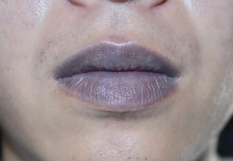 Cyanotic lips or central cyanosis at Southeast Asian, Chinese young man with congenital heart disease.
