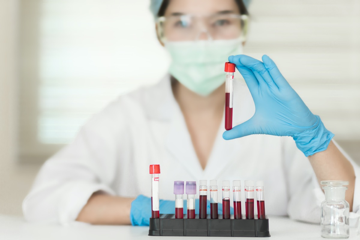 Female Technician holding blood tube test, a rack of blood samples Tubes of patients in laboratory in the hospital.