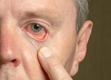 male eye with reddened eyelid and cornea, conjunctivitis