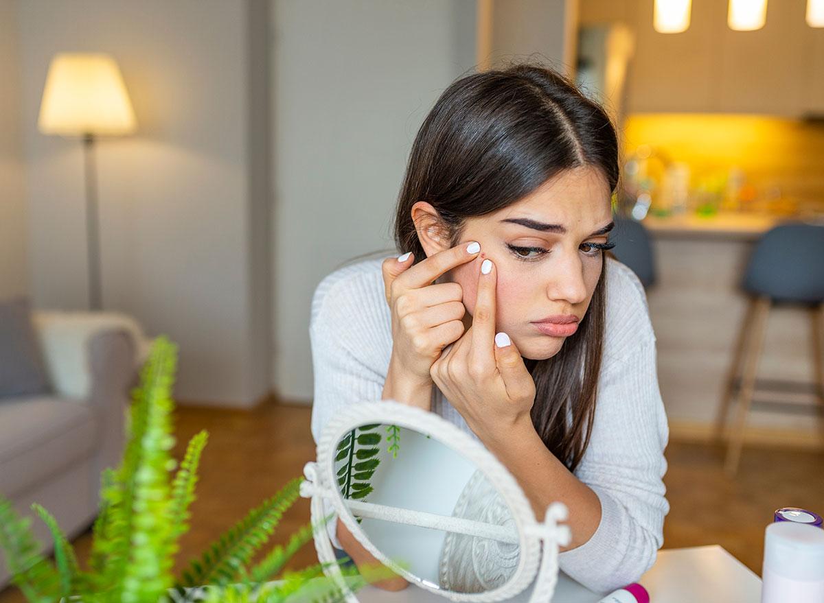 woman pimple