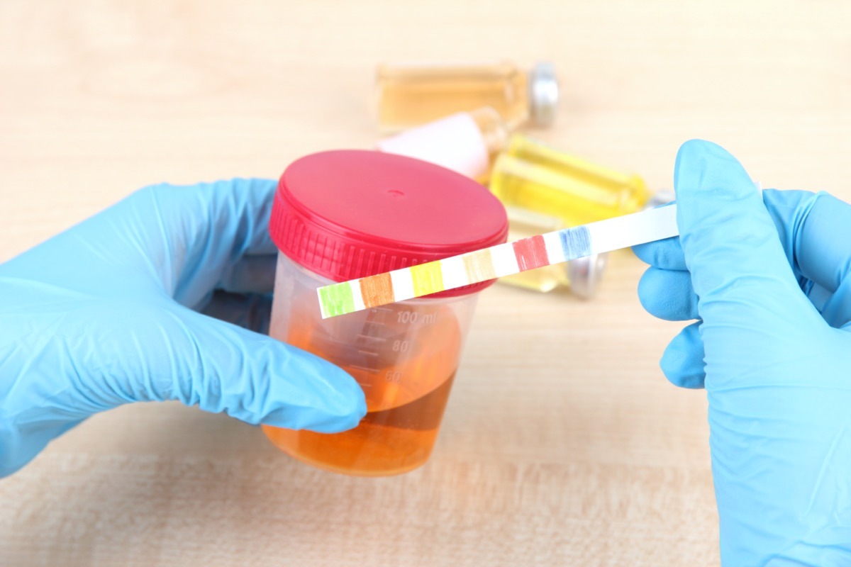 Test strip for control of the urine