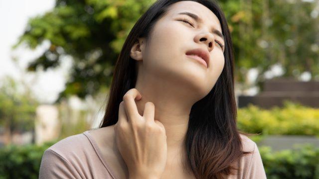 Woman mosquito bite