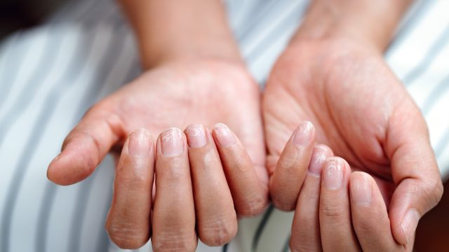brittle nail problem iron deficiency