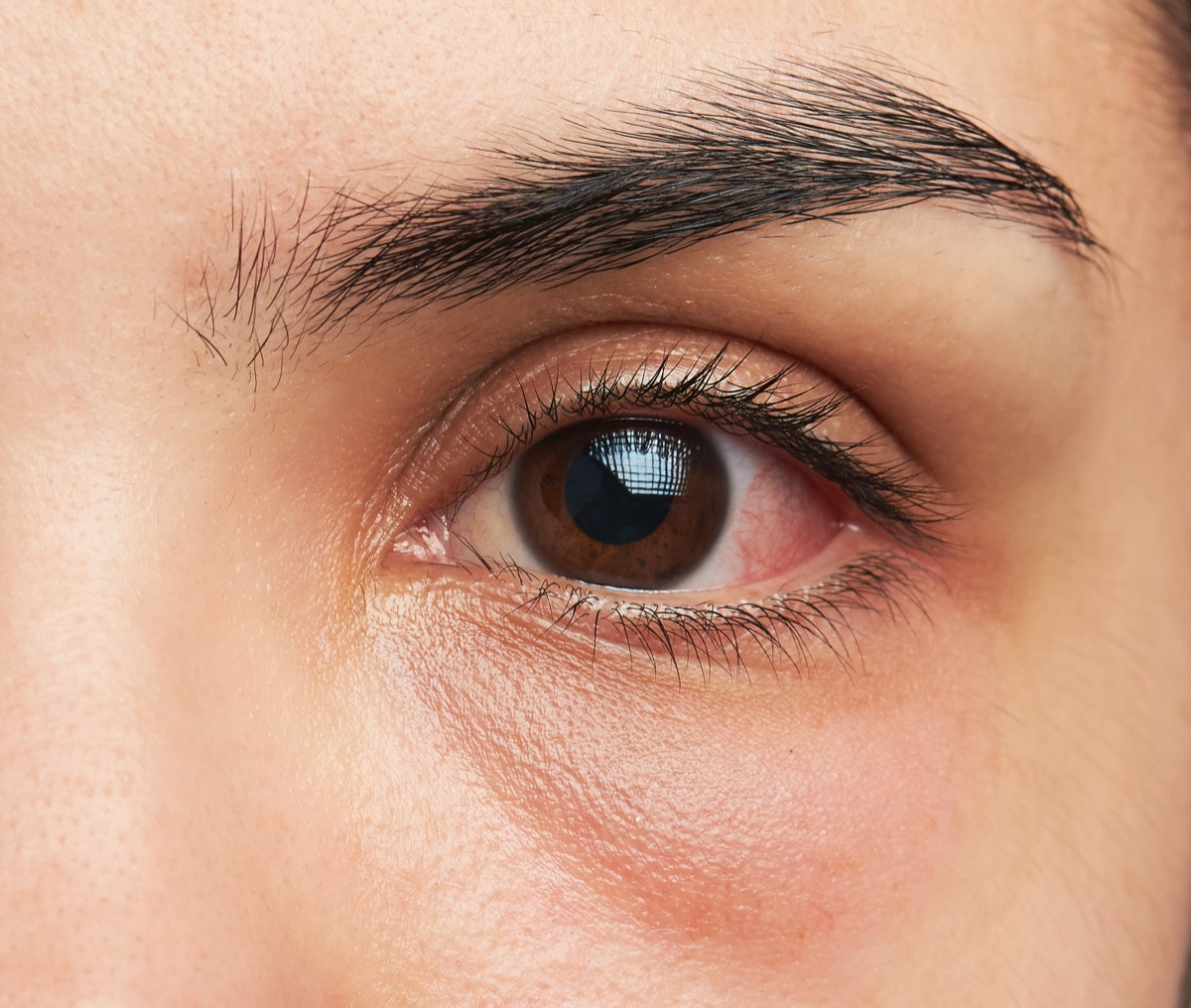 A woman's pink eye with infection.