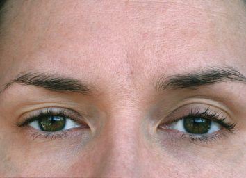 woman with ptosis