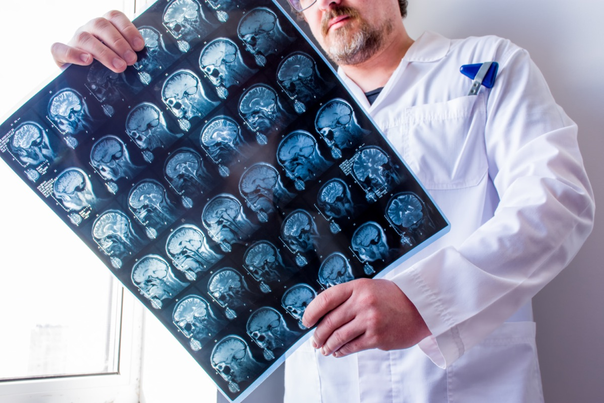 Doctor examines MRI scan of head, neck and brain of patient