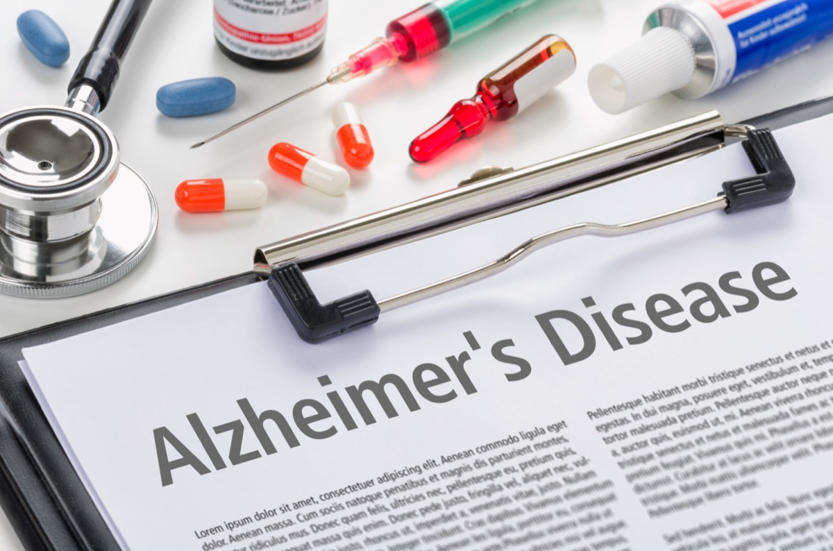 The diagnosis Alzheimers disease written on a clipboard