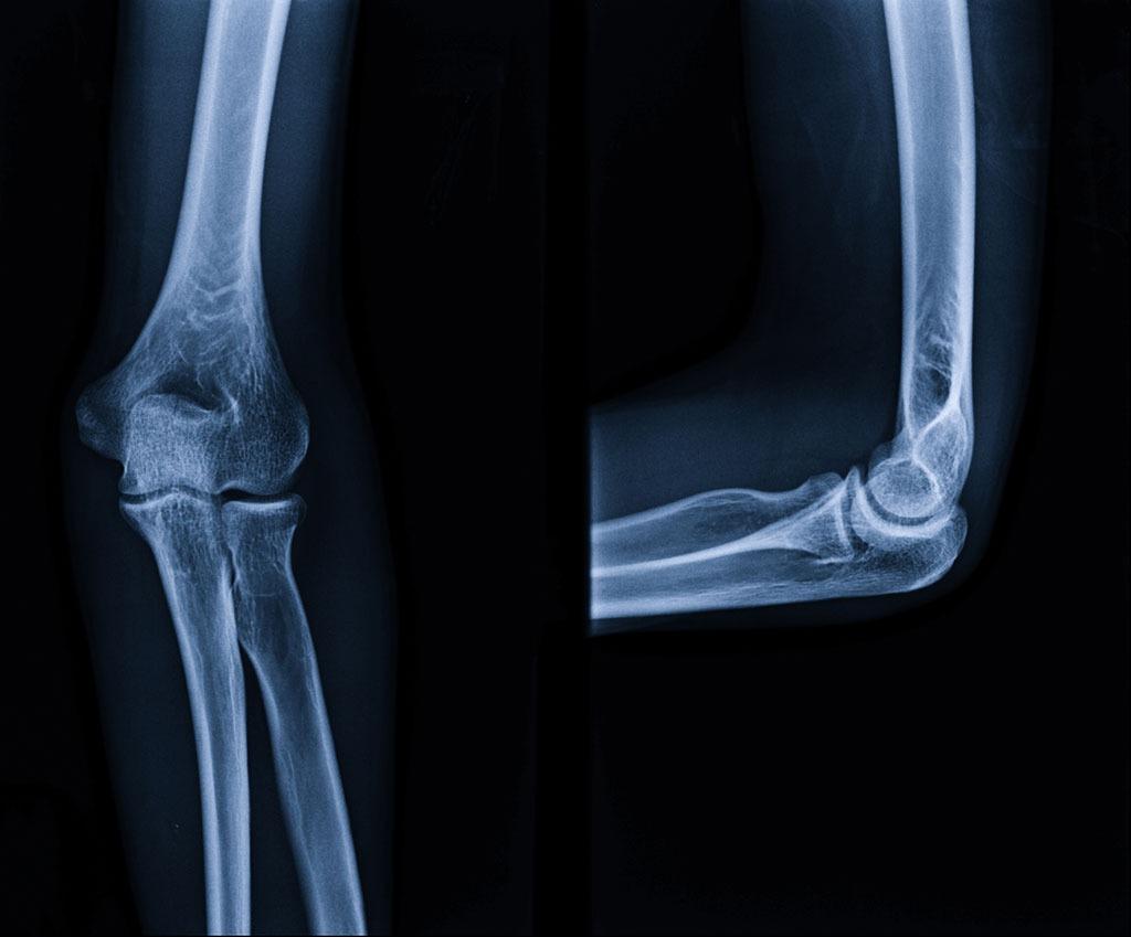 Xray bones